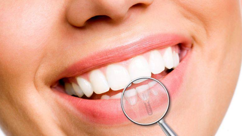 Il massimo esperto di implantologia dentale all'avanguardia
